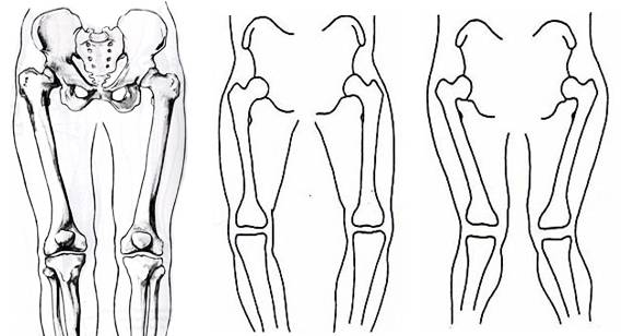 how to remember the difference between varus and valgus