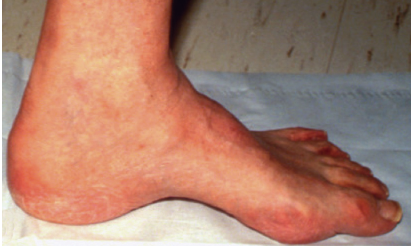 Plantar Fat Pad Atrophy
