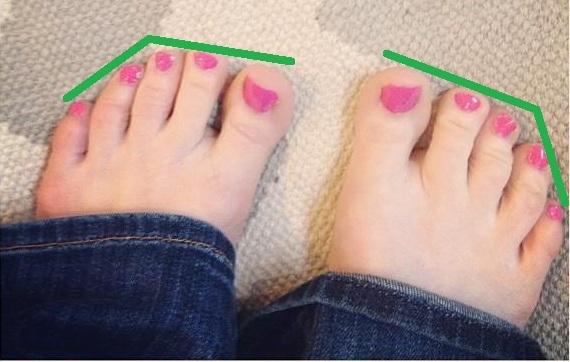 wide feet – walkwellstaywell