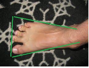 c614982cee9 square toes – walkwellstaywell