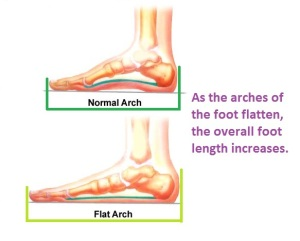 foot flattens gets longer