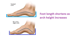 foot shortens as arch increases