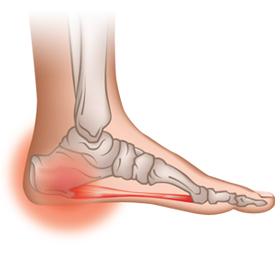 Stone Bruise on Heel