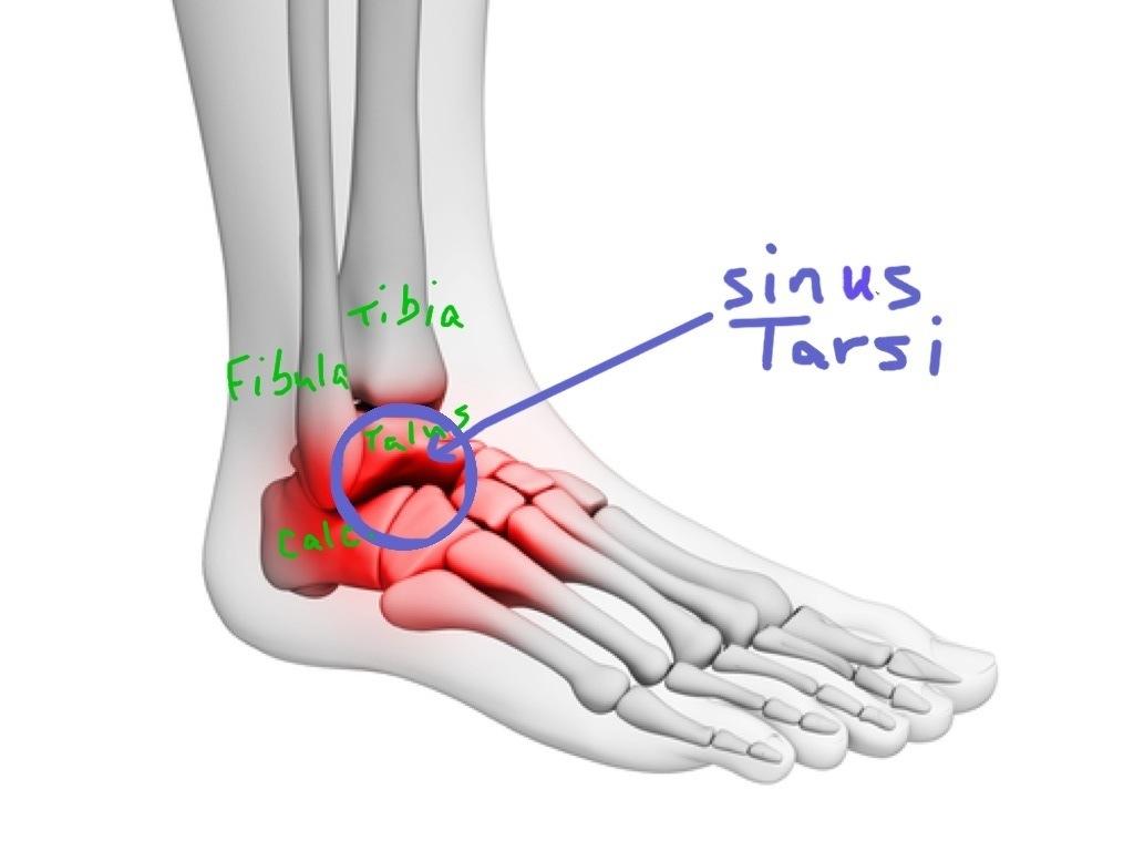 The Sinus Tarsi | walkwellstaywell