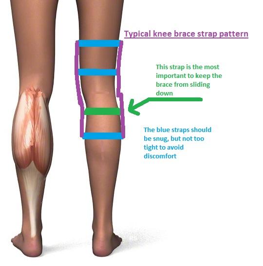 knee braces | walkwellstaywell