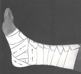 Ankle tape