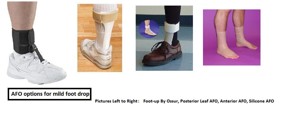 tendon transfer for foot drop pdf