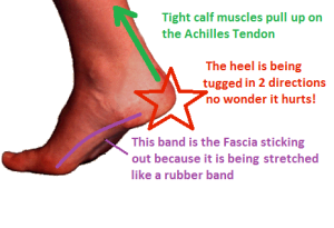 tight calves = sore fascia